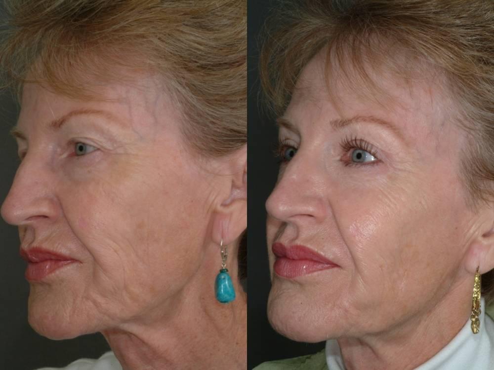 Que les huiles cosmétiques sont utiles à la peau autour des yeux